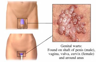 tratament veruci genitale