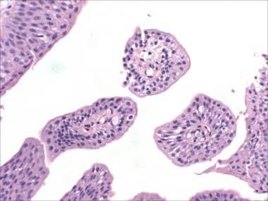 bladder papillomatosis