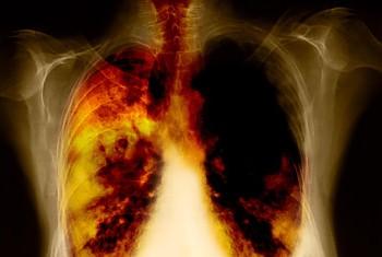 simptome cancer mediastin