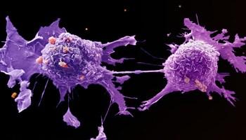 Aggressive cancer cells - Traducere