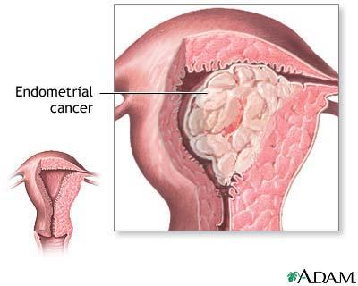 cancer endometru stadializare