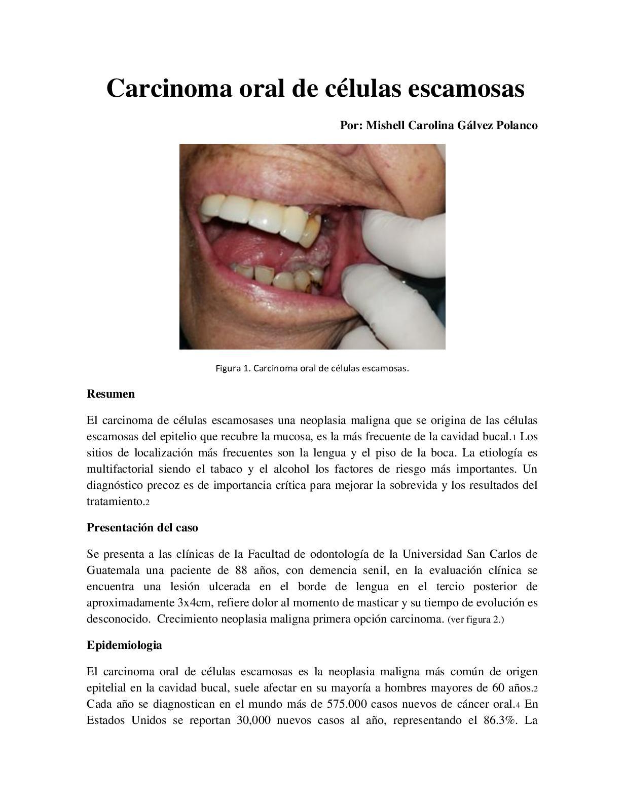 cancer bucal caso clinico