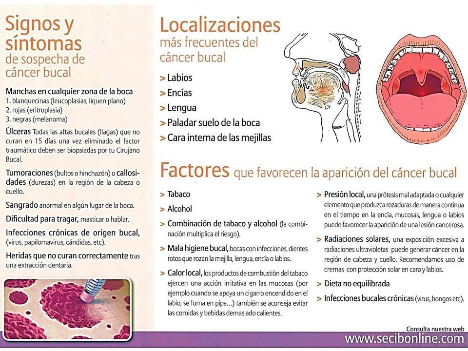 Cancer bucal sintomas y signos. pcmaster.ro (ZambetSanatos) on Pinterest Cancer bucal causas