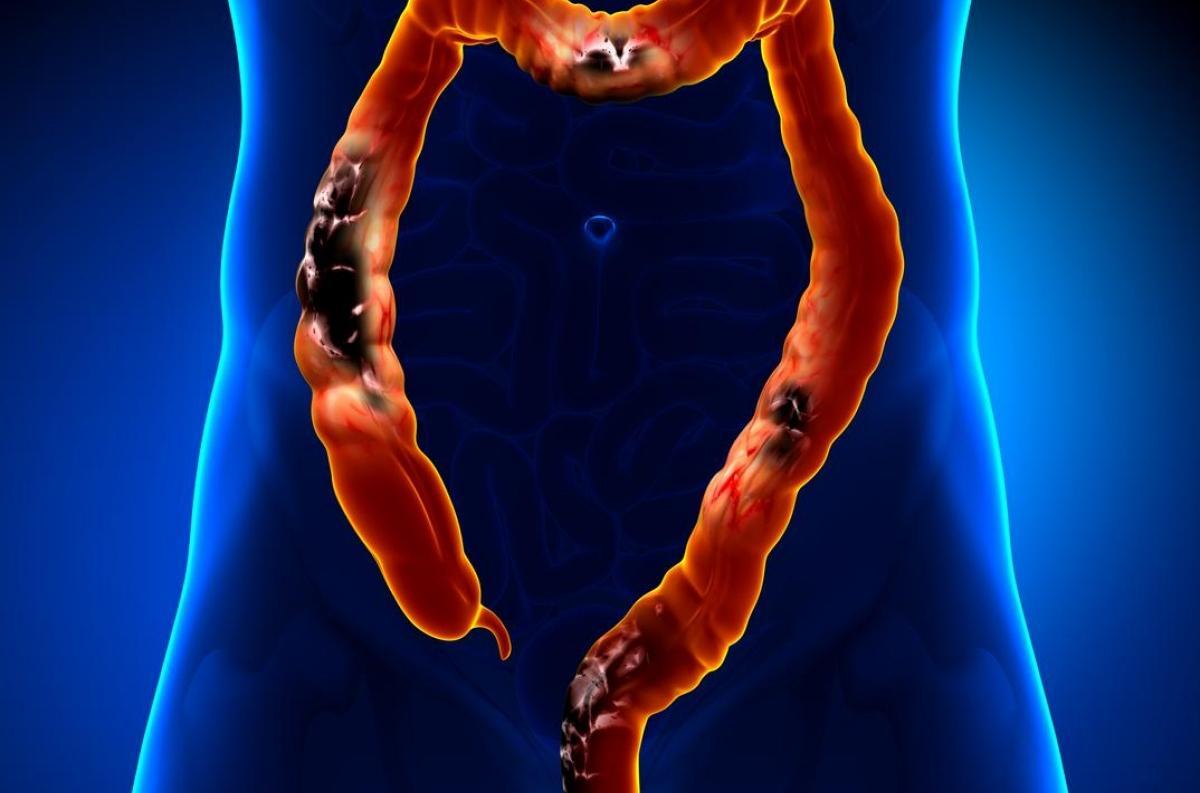 cancer colorectal jeune homme