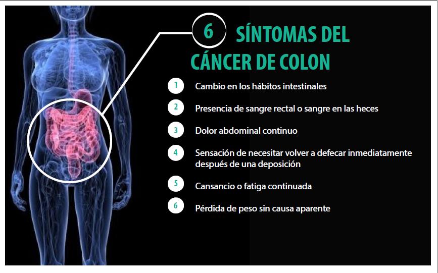 cancer de colon y sus sintomas