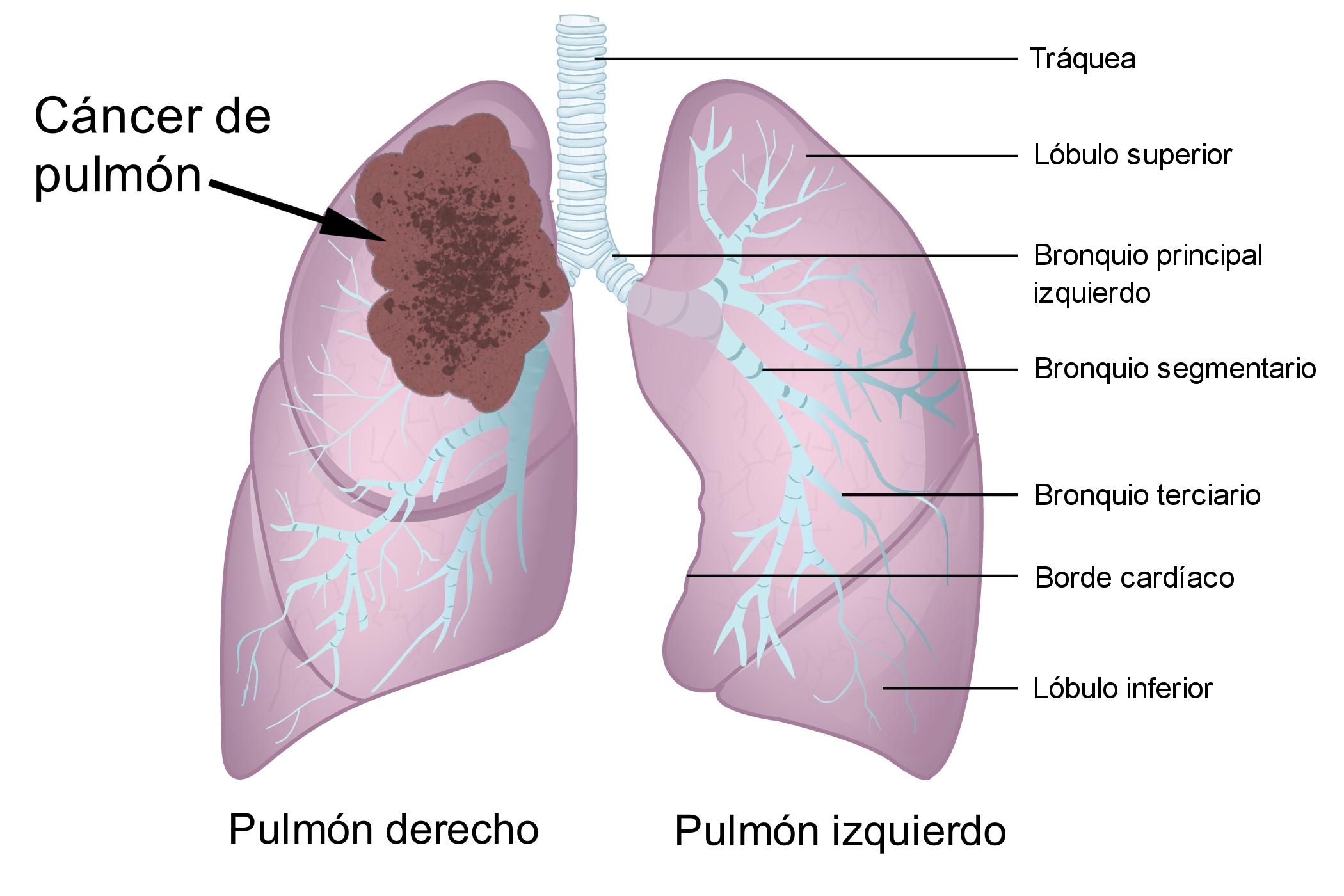 Ceea ce dă ecografie transrectală de prostată - Cancer de prostata definicion