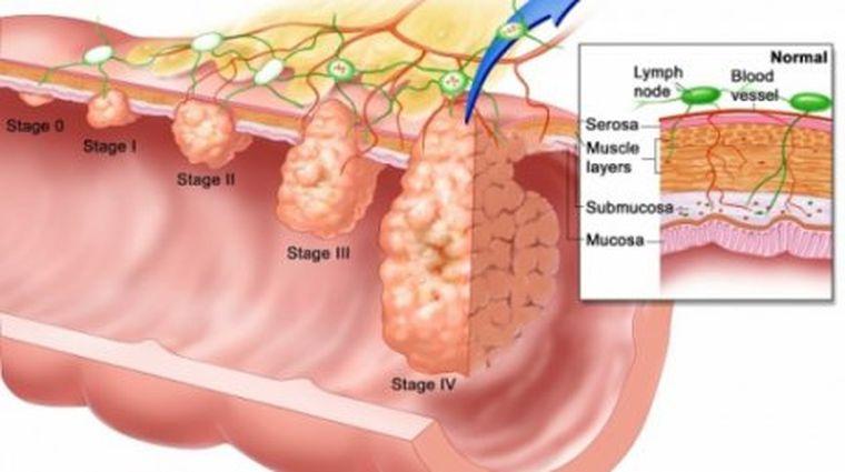 cancer la colon barbati simptome cura pentru ficat marit