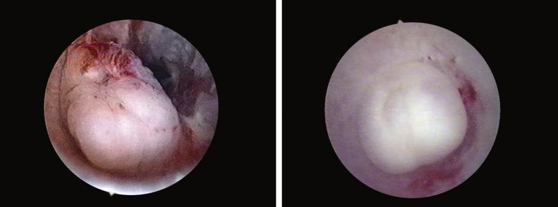 Cancer on tip of urethra