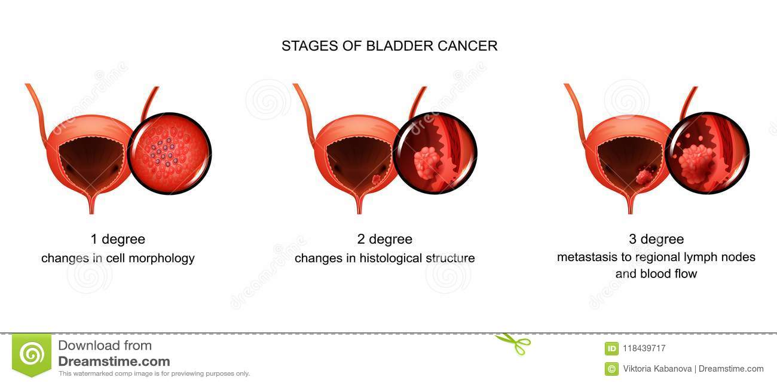 Cancer de colon ultima etapa - pcmaster.ro - Cancer peritoneal etapas