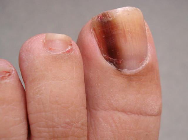 Tumorile maligne ale unghiilor - semne şi simptome, Cancer unghie picior