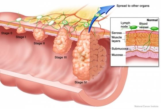 cancerul de colon simptome paraziti si tratament cu fibroame