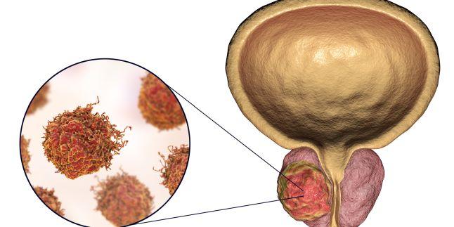Cum se diagnostichează cancerul de prostată? - Janssen 4 Patients