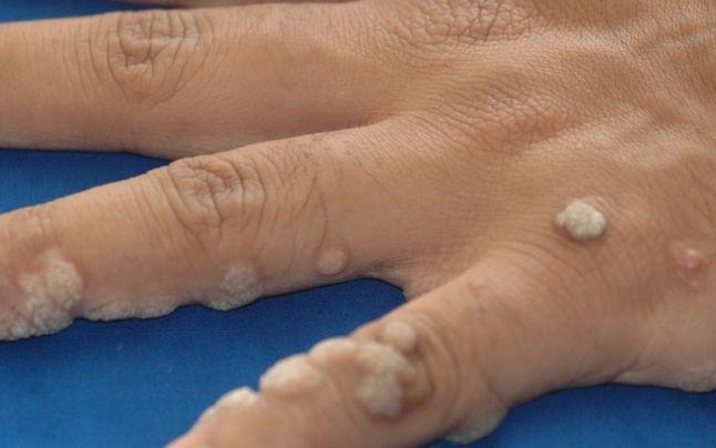 condiloamele este posibil să se vindece cum să scapi de paraziți pe coacăze