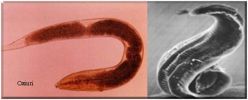 simptome la viermi de pământ băutură de detoxifiere de colon de casă