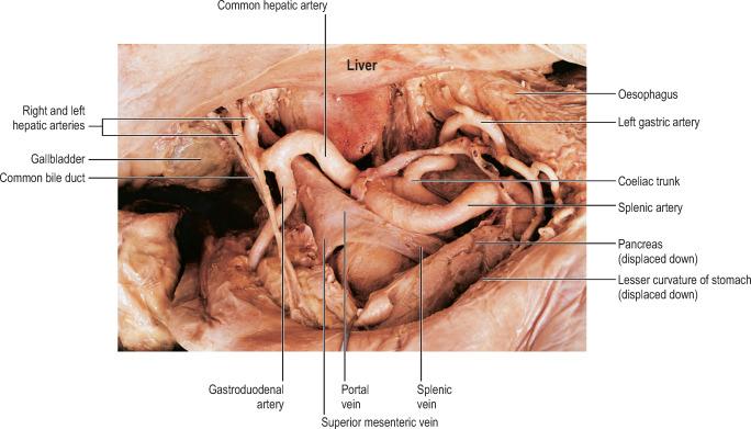 curatarea colonului acasa confluent and reticulated papillomatosis groin