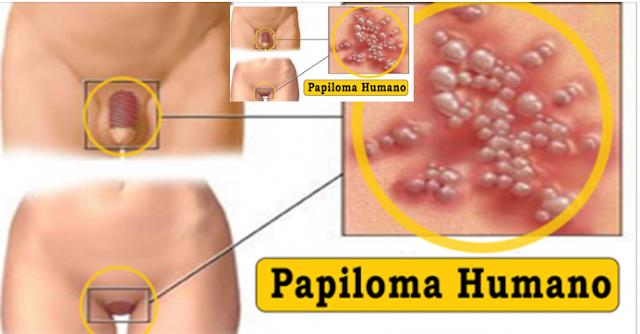 HPV – vinovatul pentru cancerul de col uterinMarius Morariu : Marius Morariu