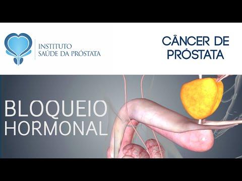 curățarea tamerlanului de paraziți cancer du colon hpv