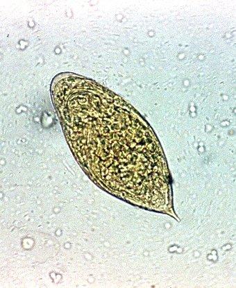 Schistosomiasis in urine,