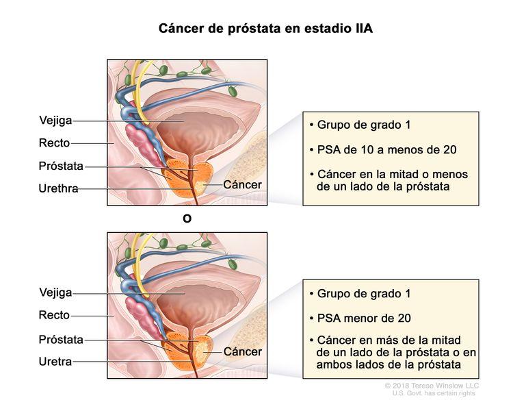 cancer de prostata tnm