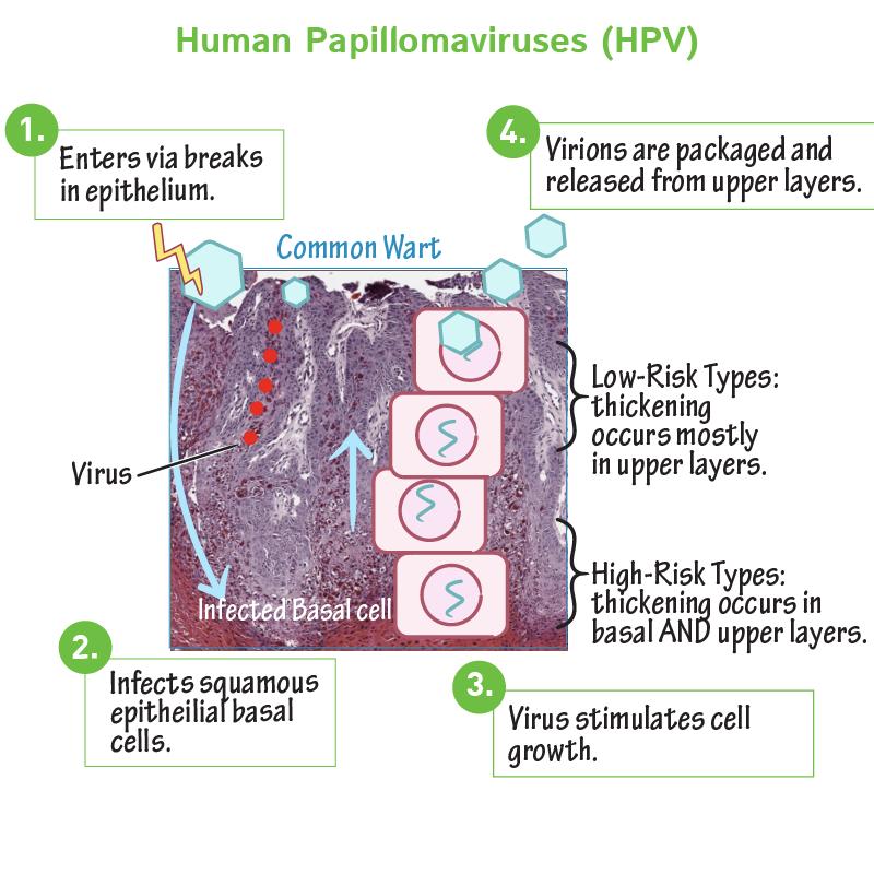 Viermi paraziti, Viermi paraziti exemple
