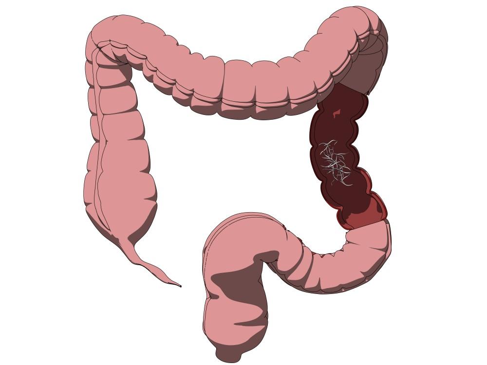negi genitali femei tratament toxicitate antihelmintică