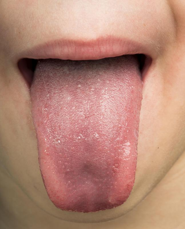 ce medicamente pentru a preveni viermii nemathelminthes phylum