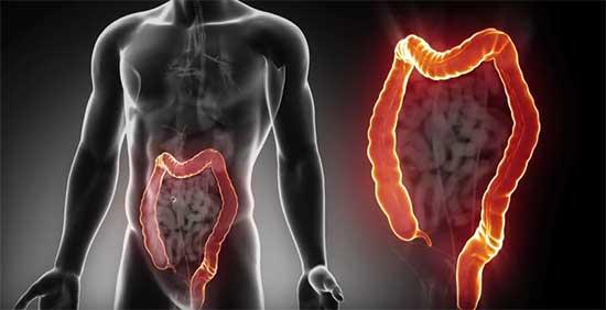 Cancer de colon en español | Diccionario Rumano-Español | Glosbe