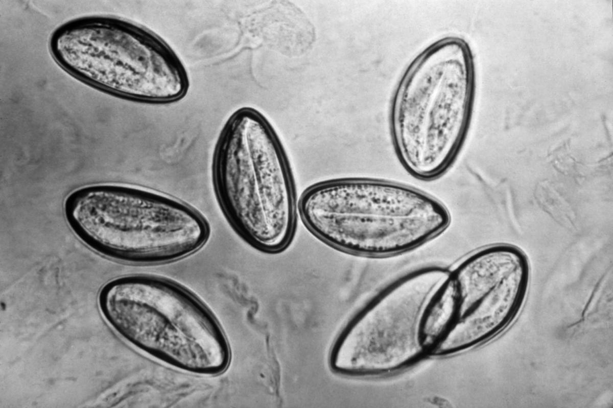 Parazity v tele produkty, Hpv virus muzi liecba