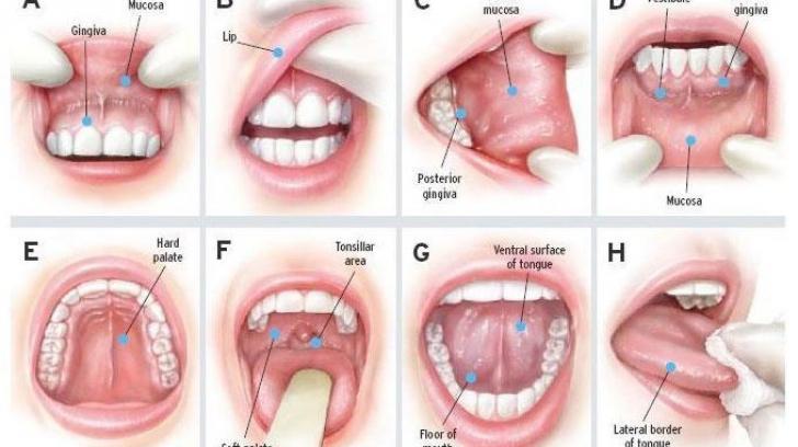 simptome cancer de vezica urinara papiloame pe fața unui copil