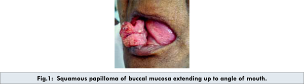 giant cell papilloma