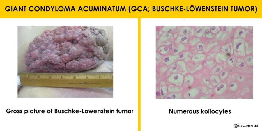 hpv condyloma acuminatum