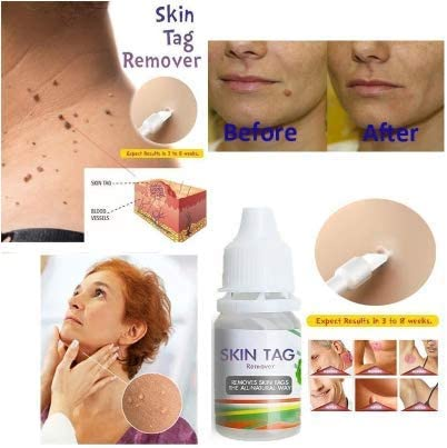 hpv treatment lotion