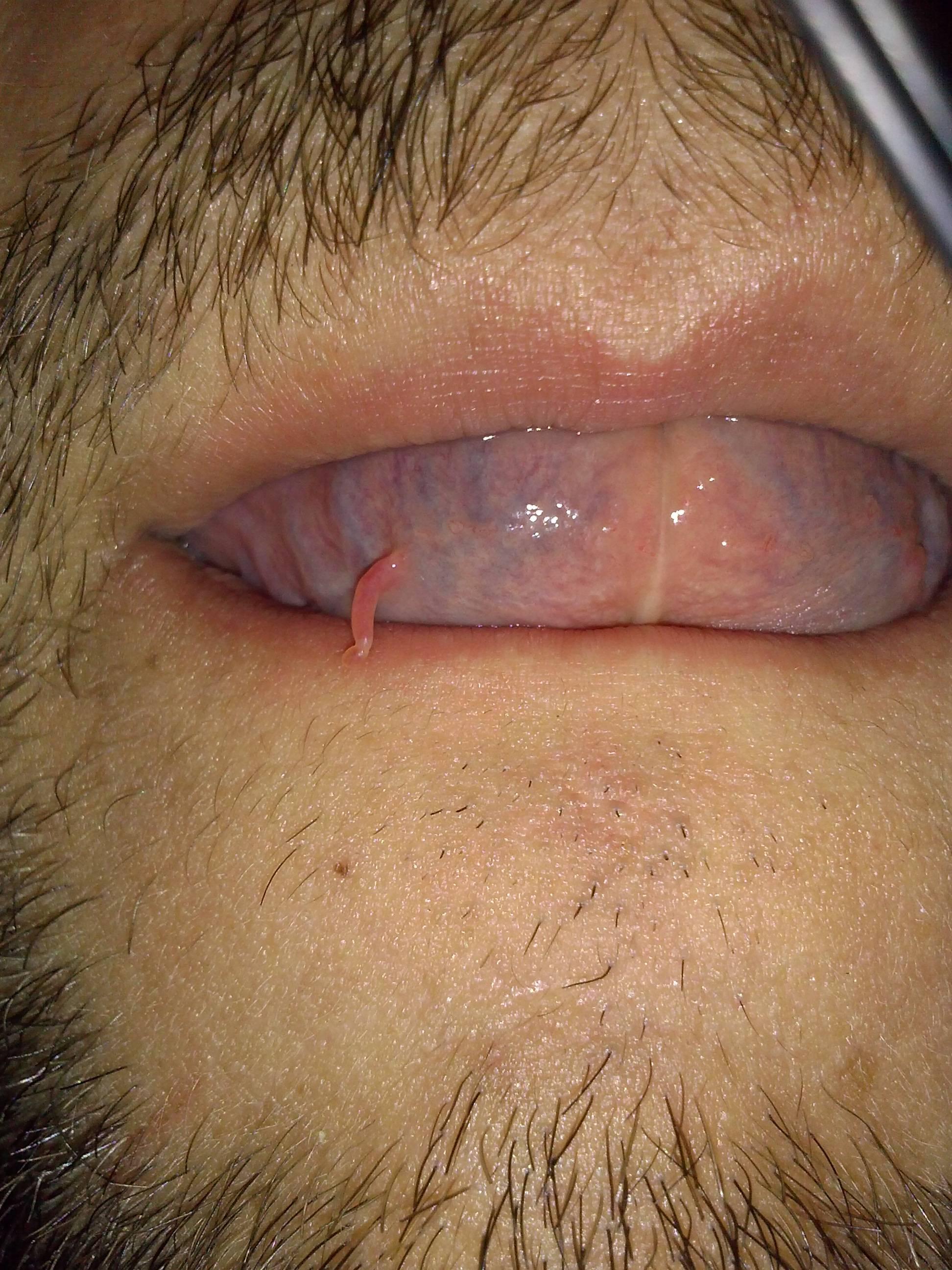 Hpv under tongue reddit. Renal cancer risk