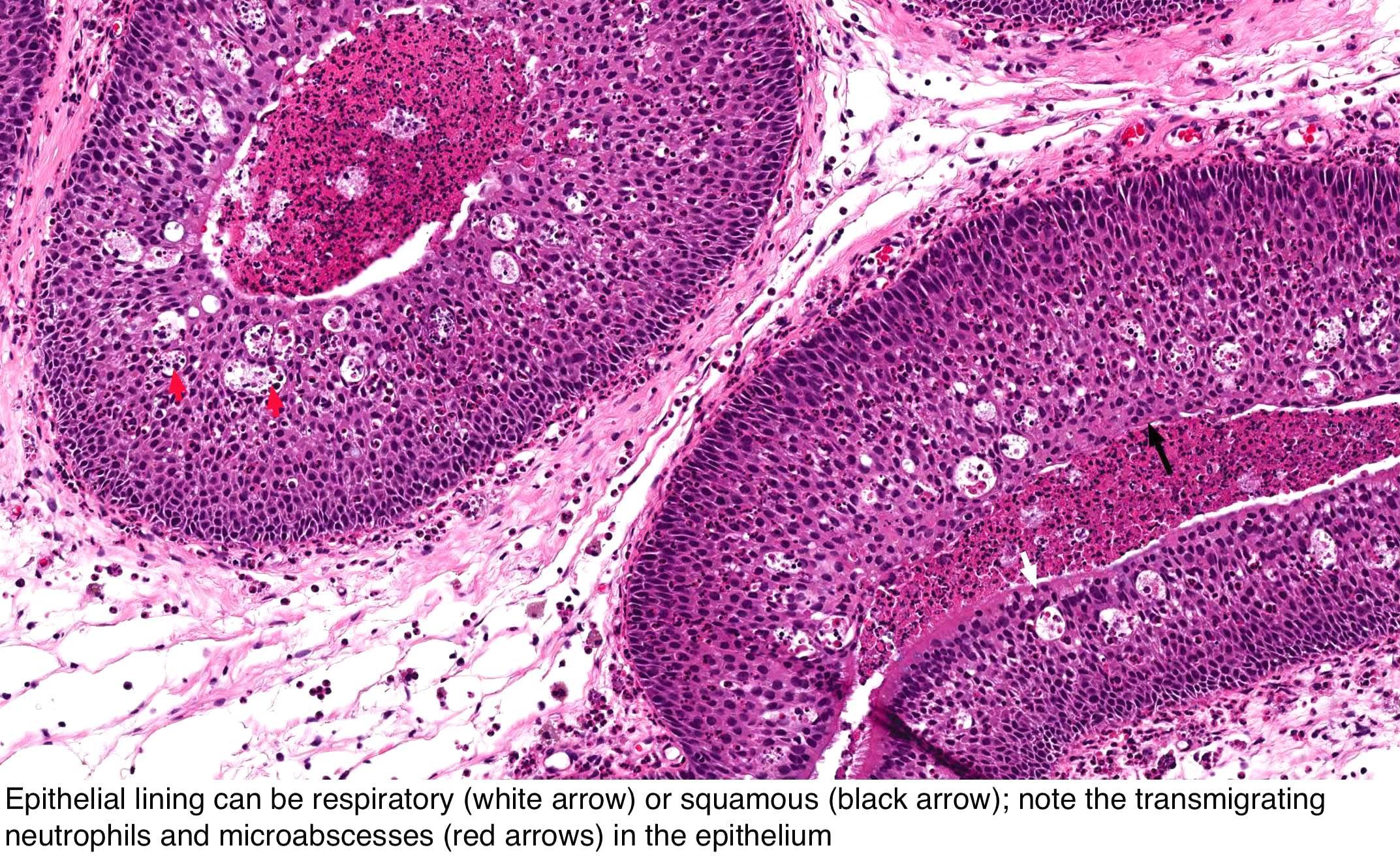 Inverted sinonasal papilloma pathology