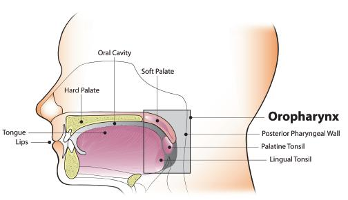 Hpv positive oropharyngeal cancer symptoms - Hpv-positive oropharyngeal cancer treatment.
