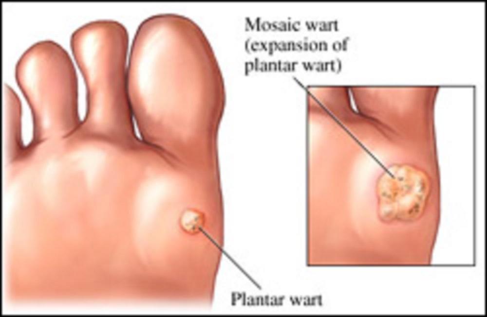 Hpv virus foot warts. Pin on sanatate