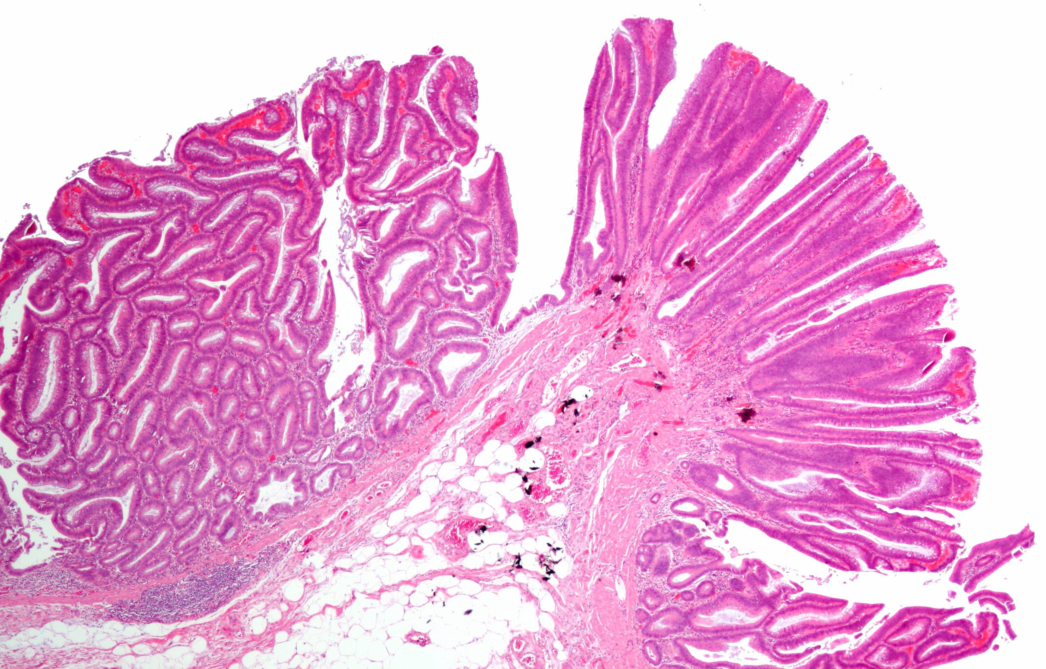 Analize Markeri tumorali - Preturi si informatii utile   Bioclinica