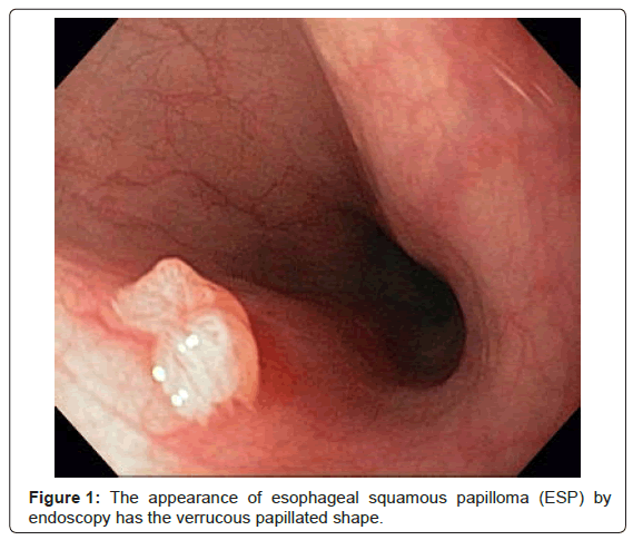 Squamous papilloma of the esophagus, neoplasia 1 squamous papilloma medicamento de oxiuros