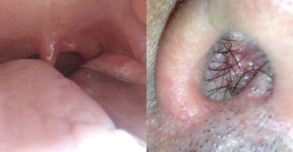 Hpv in gola sintomi