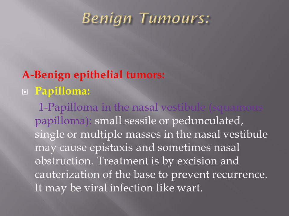 Inverted papilloma sinus causes