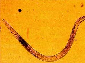 Giardiaza și marea ,viermi în carnea de cerb