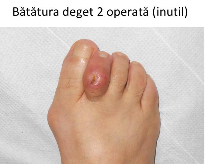 pielea umedă pe degetele de la picioare porteur sain du papillomavirus
