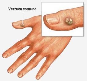 Rimedi naturali per combattere il papilloma virus. Rimedi naturali contro papilloma - divastudio.ro
