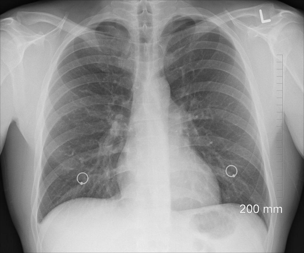 Cele mai frecvente boli bronho-pulmonare: ce le declanșează și cum le recunoaștem? – Smart Medical