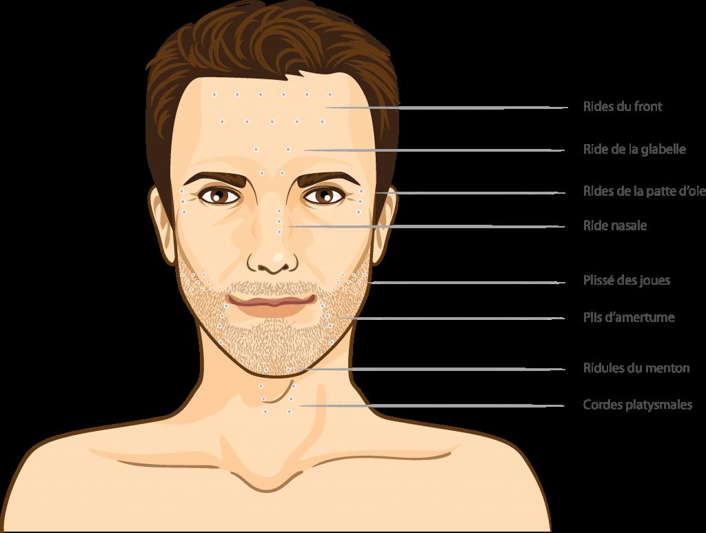 toxine visage