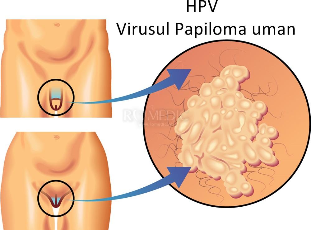 Infectie genitala cu Human Papilloma Virus (HPV)