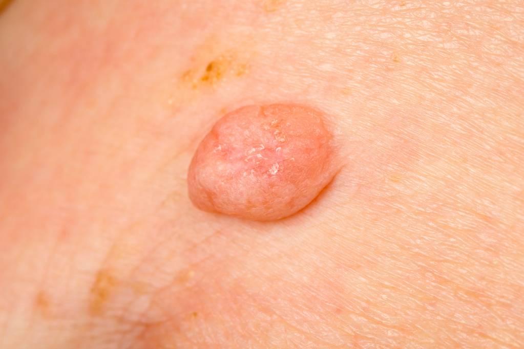 veruci genitale patogeni ce pastile pentru tratarea papilomelor